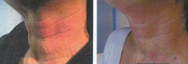 Pelleve Radiofrequency Treatment